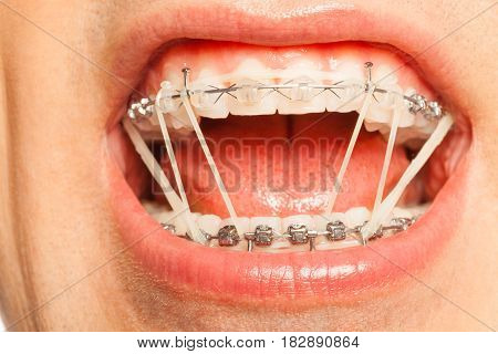Man's mouth with braces and rubber correction strings on dental hooks fixing position of teeth