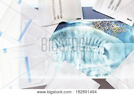Many dental tools for braces including latex rings and clamps lay on xray jaw