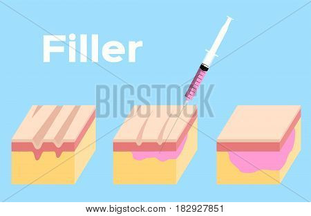 skin filler vector . It can cure the wrinkle