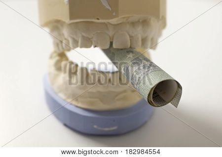 plaster cast with a curled money bill caught between the teeth