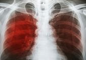 Pulmonary Tuberculosis ( TB ) : Chest x-ray show alveolar infiltration at both lung due to mycobacterium tuberculosis infection poster
