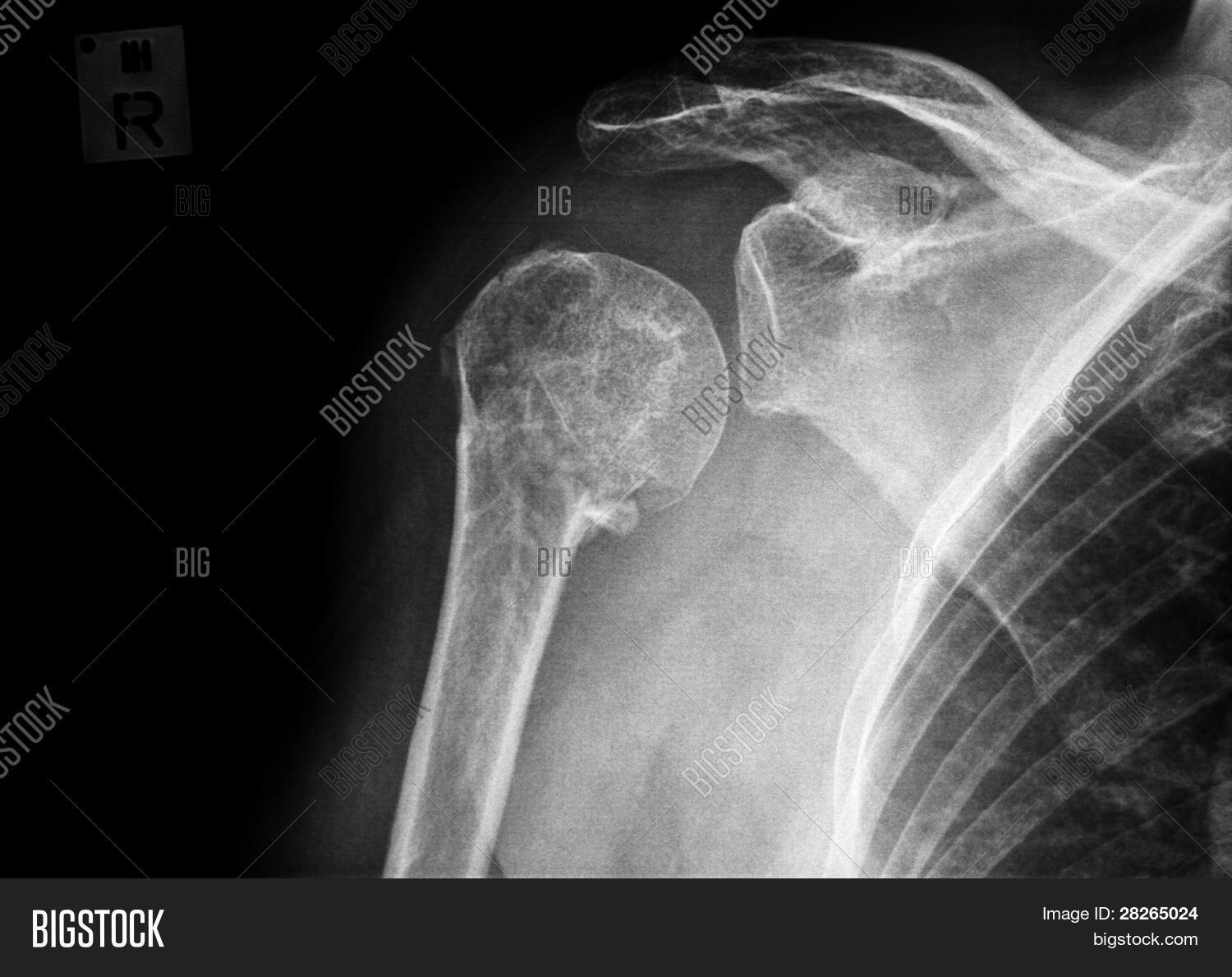 Fracture Proximal Image Photo Free Trial Bigstock
