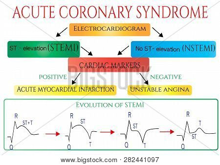 Acute Coronary Syndrome. Schematic Electrocardiogram Of Myocardial Infarction Heart Attack .