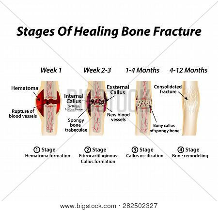 Stages Of Healing Bone Fracture. Formation Of Callus. The Bone Fracture. Infographics. Vector Illust
