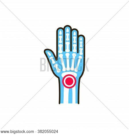 Arthritis Wrist Line Color Icon. Inflammation Joint. Sign For Web Page, Mobile App, Button, Logo. Ed
