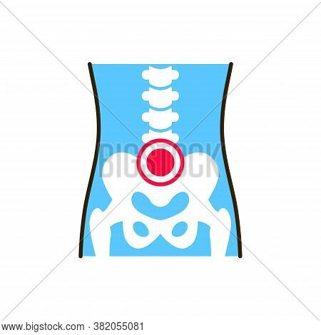 Pelvic Arthritis Line Color Icon. Inflammation Joint. Sign For Web Page, Mobile App, Button, Logo. E