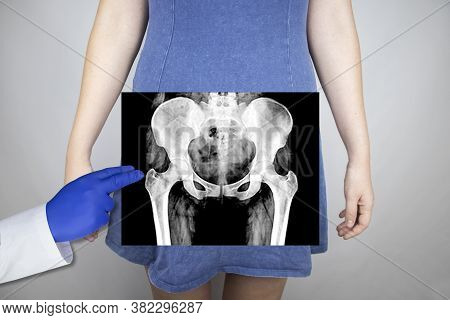 X-ray Of The Pelvic Bones Of A Woman. Radiologist Examines X-ray Examination. A Picture Of The Hip J