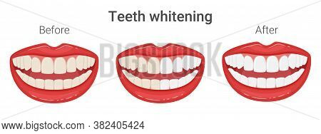 Even Yellow And White Teeth In The Mouth. Teeth Whitening. Mouth In A Smile. Aesthetic Dentistry. Co