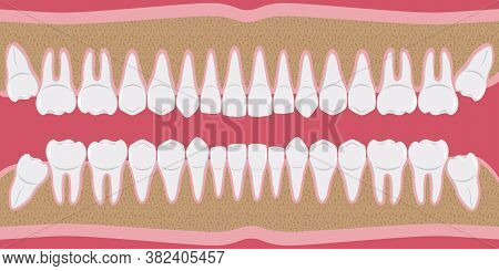 Healthy White Human Teeth In A Row. Beautiful, Even Teeth With Roots. The Gums Are Cut To The Bone.
