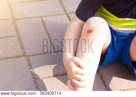 The Wound On The Childs Leg . Fell On The Road. Broken Knee. Health. Article About The Fall Of A Chi