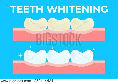 Teeth Whitening Or Bleaching Vector Illustration. Concept Of Dental Healthcare, Stomatology Care, Pr