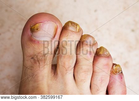 Fungus Infection On Nails Of Mans Foot.