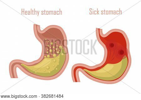 Human Stomach, Digestive System. A Healthy And Sick Stomach. Vector Illustration