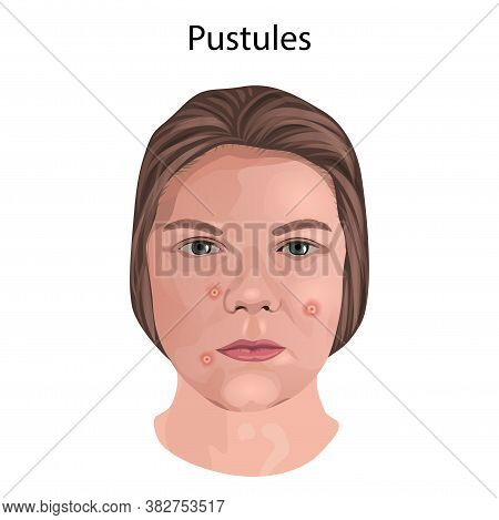 Acne. Pustules. Young Woman Face With Skin Inflammation.