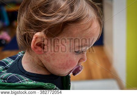 Children Viral Disease Or Allergies. Red Measles Rash On Baby.