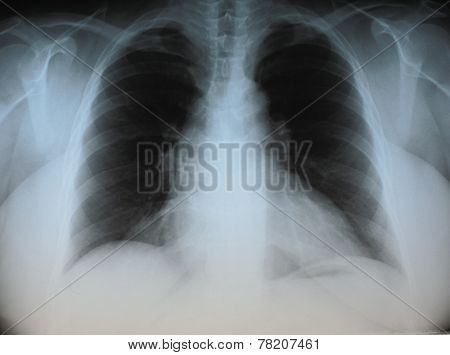 X ray of human chest on negatoscope poster