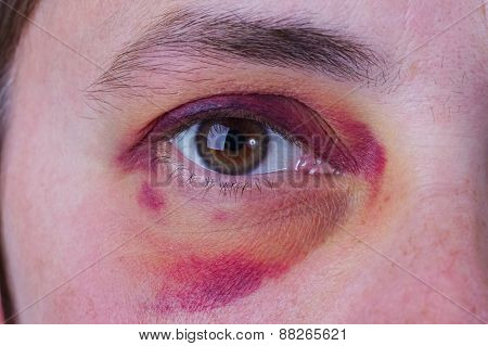 Human eye with a large purple bruise poster