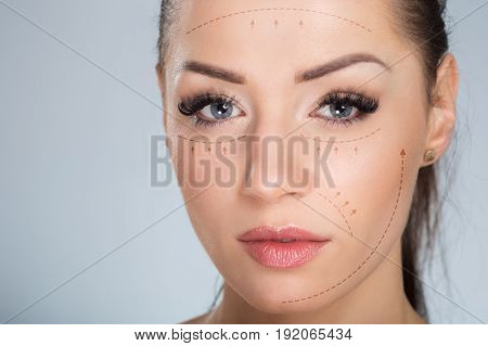 Pretty Woman Face With Surgical Markers
