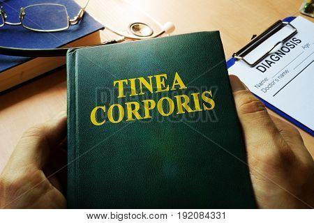 Hands holding book Tinea corporis. Medical concept.