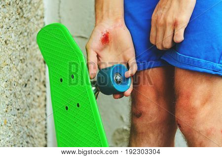 Closeup of a young caucasian man with a skate board in his hand. Injuries in extreme sports. Traumatic extreme sports concept