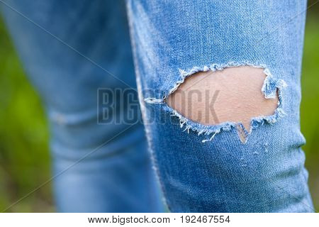 CLose up picture of a woman's ripped blue jeans on her leg