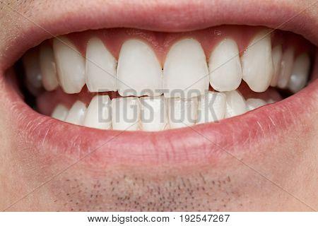 Macro of healthy man teeth. Clean white human teeth in smile