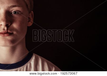 Cropped Front View On Boy With Bloody Nose