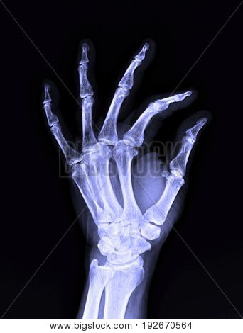X-ray Image Of Male Human Left Hand