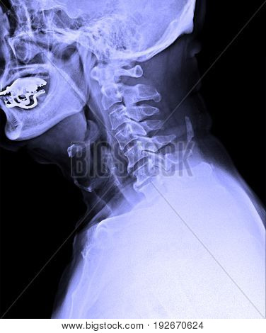 X-ray Image Of Male Human Cervical Spine