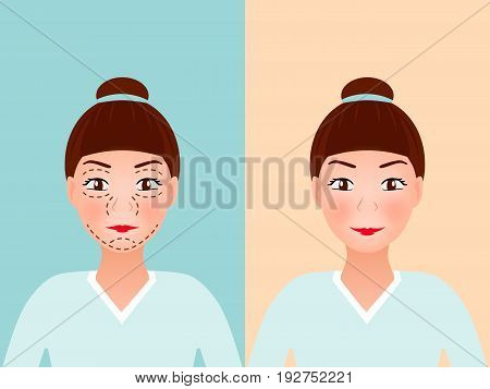 Drawing perforation lines on young pretty woman's face for plastic surgery. Before and after procedure. vector illustration. medical face lift anti-aging concept