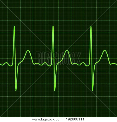Cardiogram on digital device monitor. Electrocardiogram. Graphic representation of heart work . Health and medicine. Vector illustration