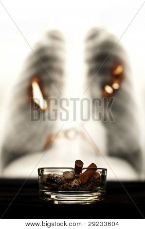 Ashtray With Lung X-ray Image