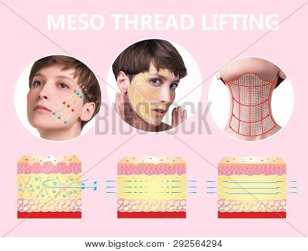 Meso thread Lift. Young female with clean fresh skin. Beautiful woman. face and neck. Lifting by threads concept. Collage poster