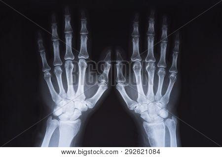 Medical X Ray Hands Image. Radiography Image.