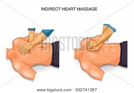 Vector Illustration Of Indirect Heart Massage Options