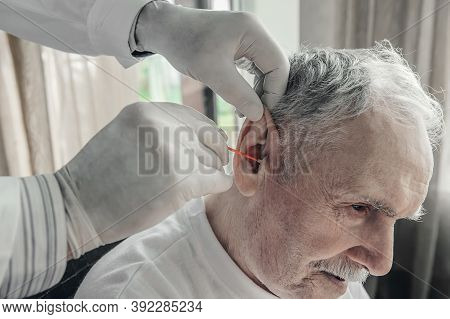 Doctor Cleanses The Earwax Of An Elderly Man. Geriatric Care For The Elderly