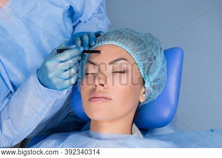 Doctor Preparing For Forehead Lift Surgery Procedure About To Draw Lift Lines With Marker Pencil On
