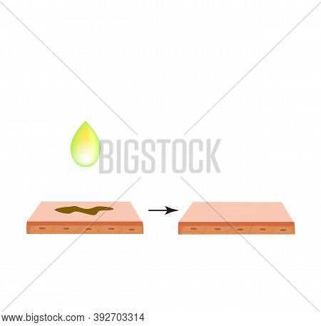 Pigmentation On The Skin. Brown Spots On The Skin. Pigmentation Treatment. Infographics. Illustratio