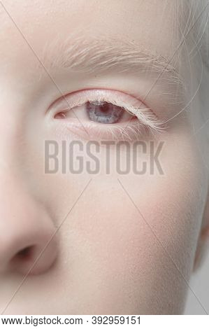 Nose And Eyelid. Close Up Portrait Of Beautiful Albino Female Model. Parts Of Face And Body. Beauty,