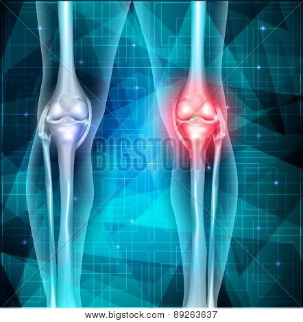 Knee Joint Pain Abstract Triangle Background