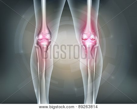 Human legs and knee joint detailed anatomy painful joint and healthy joint. Beautiful abstract technology background poster