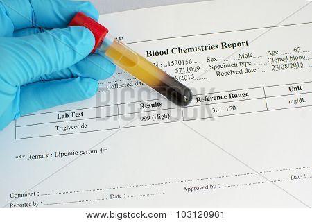 High triglyceride result