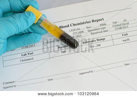 Cholesterol testing result