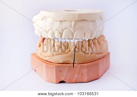 Dental casting gypsum model plaster cast stomatologic human jaws prothetic laboratory poster