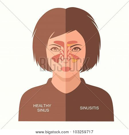 sinusitis disease,