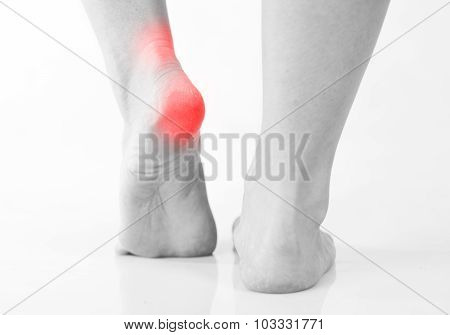 Woman's Legs, Heel And Ankle Pain