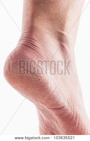 Dry heels woman on a white background closeup