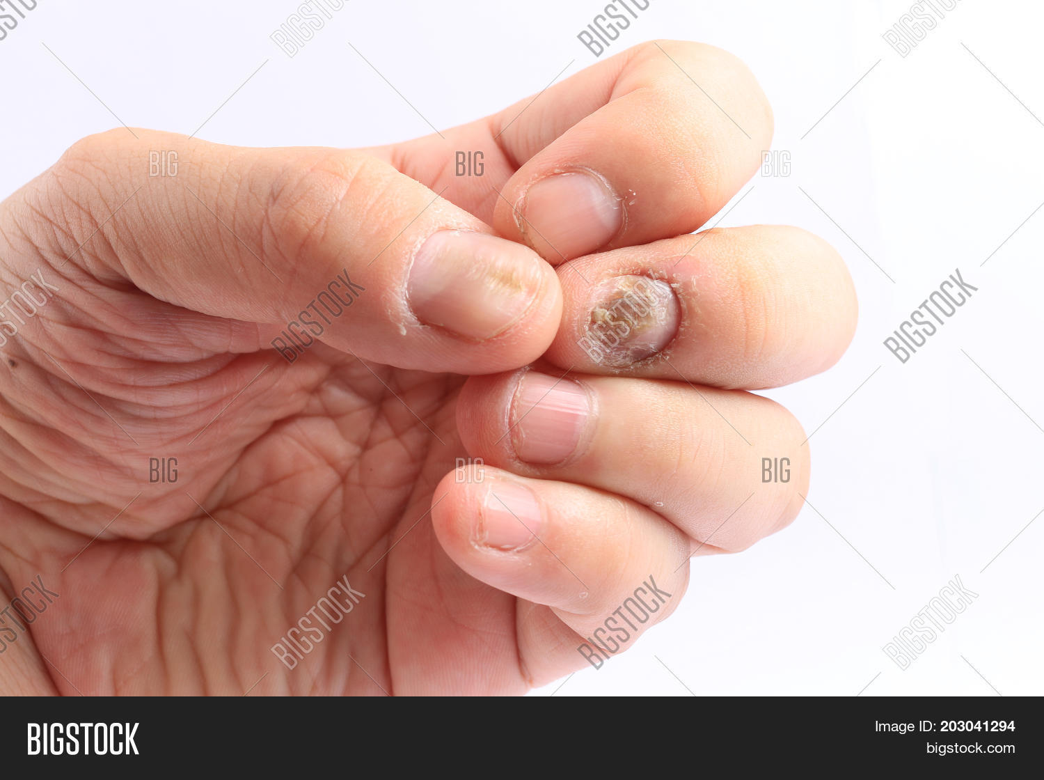 Fungus Infection On Image & Photo (Free Trial) | Bigstock