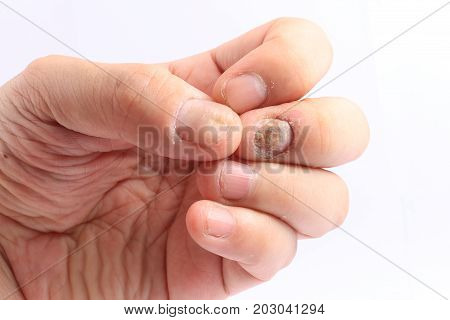 Fungus Infection On Nails Hand, Finger With Onychomycosis, Fungal Infection On Nails Handisolated On