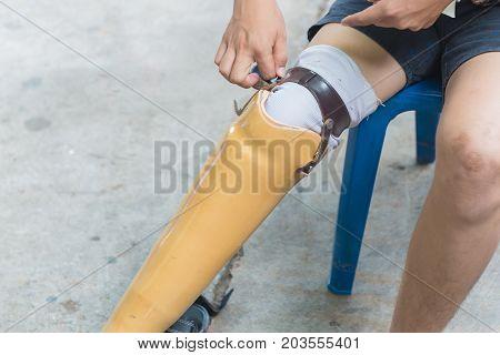 New Aluminium Prostheses Legs For Amputee Patient